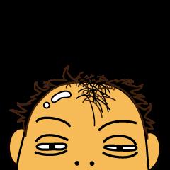 禿げたん(長崎弁)